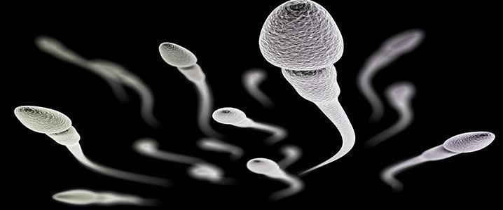 PESA (Percutaneous Epididymal Sperm Aspiration)